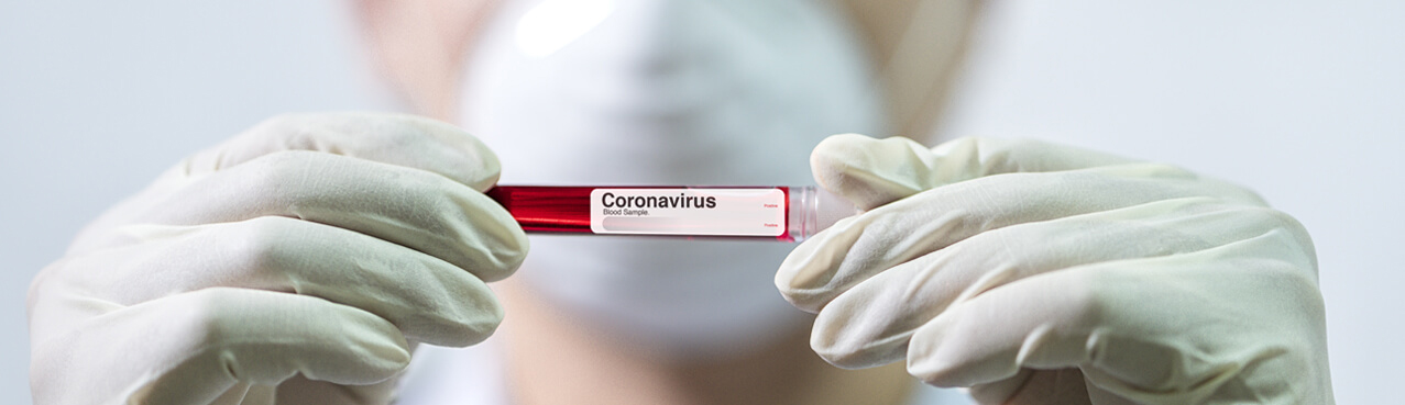 Gloved hands holding Vial with Coronavirus Label
