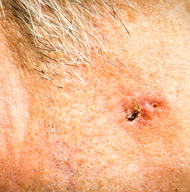 New Astro Guideline On Use Of Radiation Therapy To Treat Skin Cancer Astro Blog American Society For Radiation Oncology Astro American Society For Radiation Oncology Astro